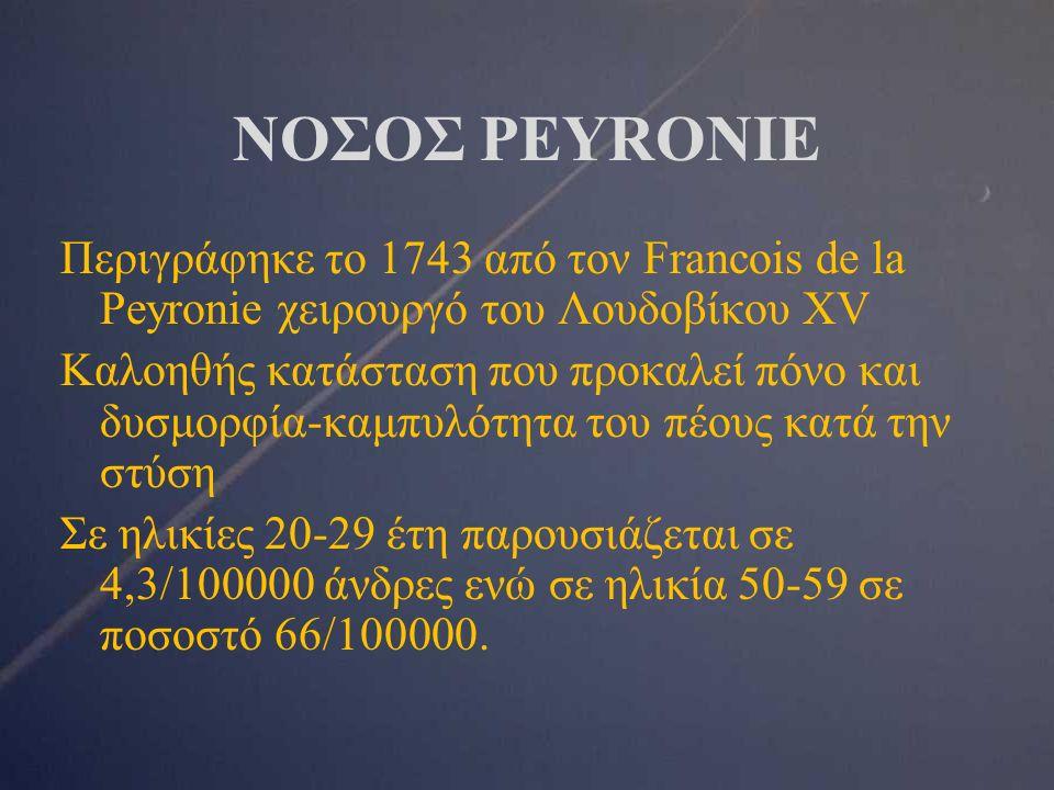 ΝΟΣΟΣ PEYRONIE Περιγράφηκε το 1743 από τον Francois de la Peyronie χειρουργό του Λουδοβίκου XV Καλοηθής κατάσταση που προκαλεί πόνο και δυσμορφία-καμπυλότητα του πέους κατά την στύση Σε ηλικίες 20-29 έτη παρουσιάζεται σε 4,3/100000 άνδρες ενώ σε ηλικία 50-59 σε ποσοστό 66/100000.