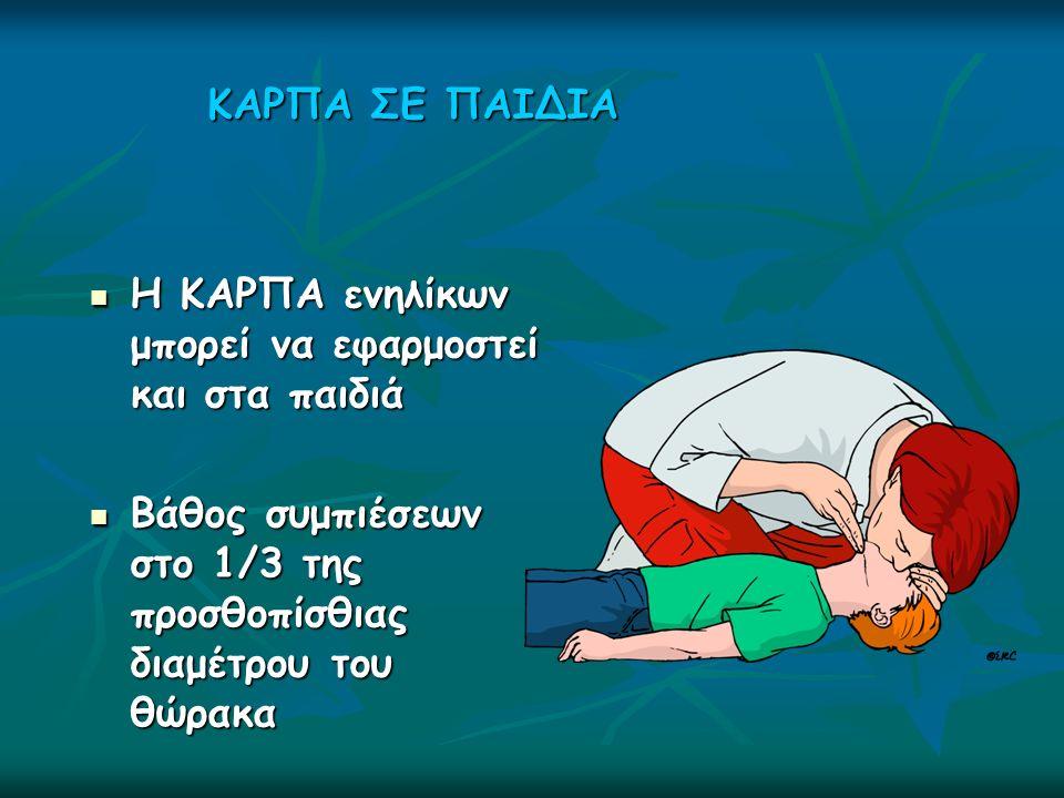 ΚΑΡΠΑ ΣΕ ΠΑΙΔΙΑ Η ΚΑΡΠΑ ενηλίκων μπορεί να εφαρμοστεί και στα παιδιά Η ΚΑΡΠΑ ενηλίκων μπορεί να εφαρμοστεί και στα παιδιά Βάθος συμπιέσεων στο 1/3 της προσθοπίσθιας διαμέτρου του θώρακα Βάθος συμπιέσεων στο 1/3 της προσθοπίσθιας διαμέτρου του θώρακα