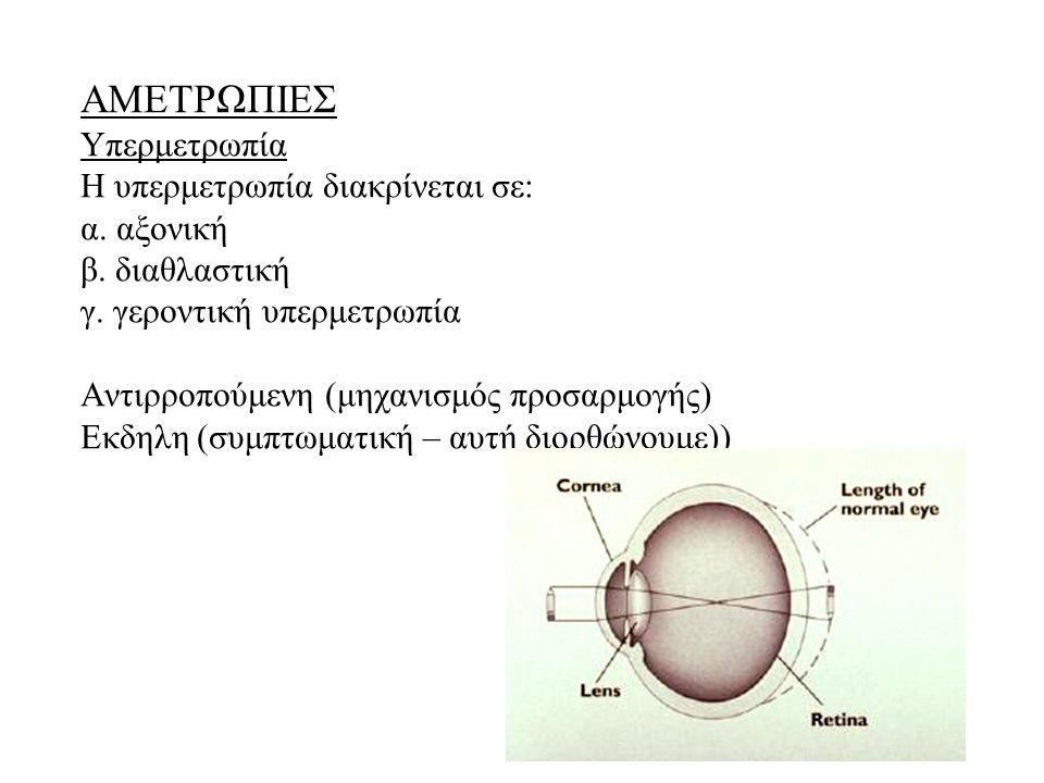 ΑΜΕΤΡΩΠΙΕΣ Υπερμετρωπία Η υπερμετρωπία διακρίνεται σε: α. αξονική β. διαθλαστική γ. γεροντική υπερμετρωπία Αντιρροπούμενη (μηχανισμός προσαρμογής) Εκδ