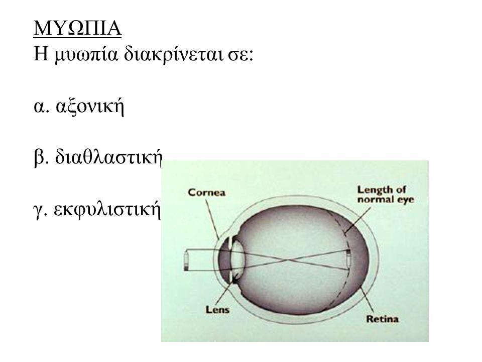 ΜΥΩΠΙΑ Η μυωπία διακρίνεται σε: α. αξονική β. διαθλαστική γ. εκφυλιστική