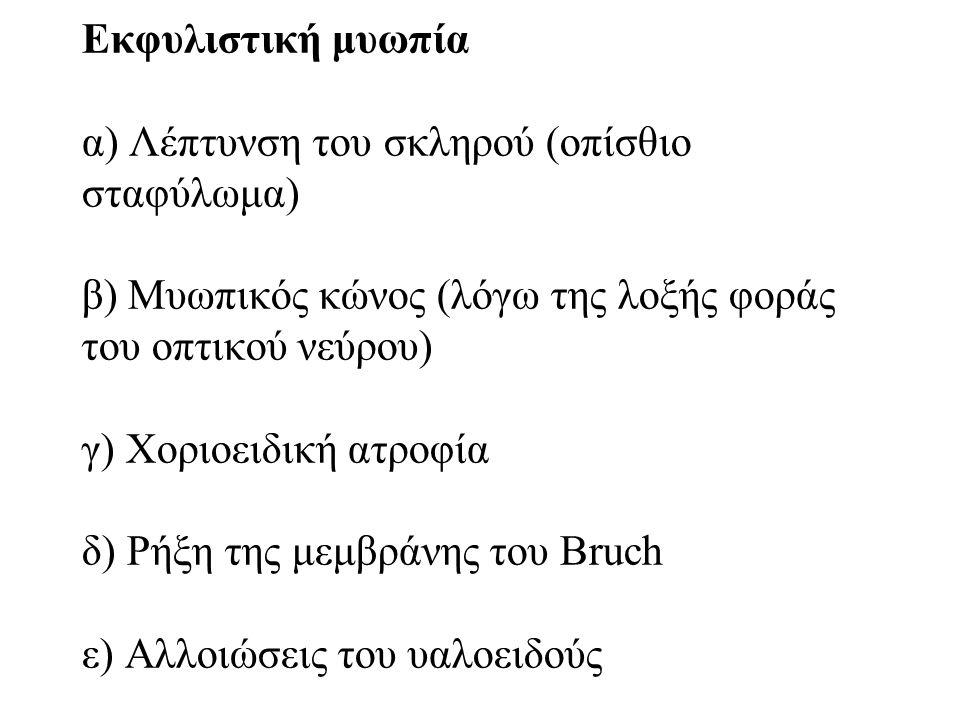Εκφυλιστική μυωπία α) Λέπτυνση του σκληρού (οπίσθιο σταφύλωμα) β) Μυωπικός κώνος (λόγω της λοξής φοράς του οπτικού νεύρου) γ) Χοριοειδική ατροφία δ) Ρήξη της μεμβράνης του Bruch ε) Αλλοιώσεις του υαλοειδούς