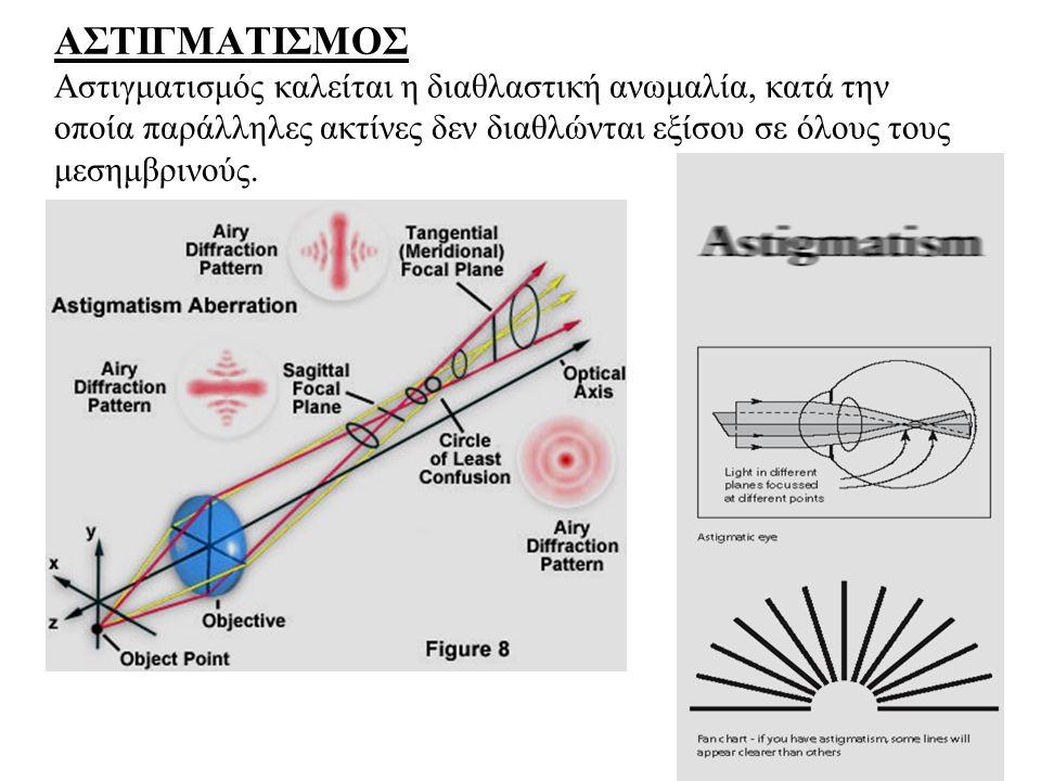 ΑΣΤΙΓΜΑΤΙΣΜΟΣ Αστιγματισμός καλείται η διαθλαστική ανωμαλία, κατά την οποία παράλληλες ακτίνες δεν διαθλώνται εξίσου σε όλους τους μεσημβρινούς.