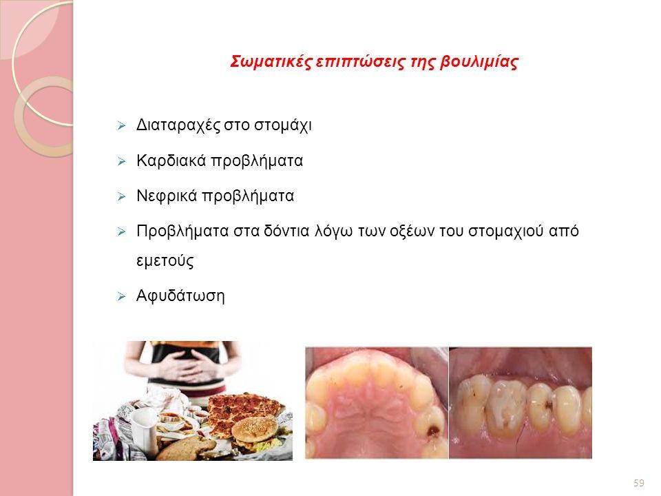 Σωματικές επιπτώσεις της βουλιμίας  Διαταραχές στο στομάχι  Καρδιακά προβλήματα  Νεφρικά προβλήματα  Προβλήματα στα δόντια λόγω των οξέων του στομ