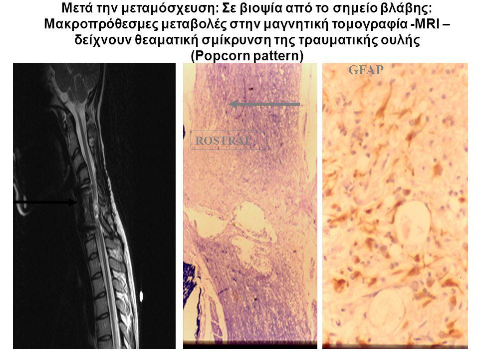 Μετά την μεταμόσχευση: Σε βιοψία από το σημείο βλάβης: Μακροπρόθεσμες μεταβολές στην μαγνητική τομογραφία -MRI – δείχνουν θεαματική σμίκρυνση της τραυματικής ουλής (Popcorn pattern) ROSTRAL CAUDAL GFAP