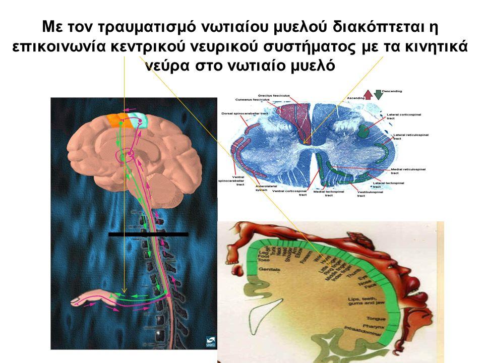 Με τον τραυματισμό νωτιαίου μυελού διακόπτεται η επικοινωνία κεντρικού νευρικού συστήματος με τα κινητικά νεύρα στο νωτιαίο μυελό