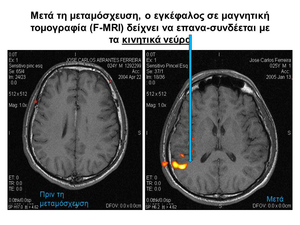 Μετά τη μεταμόσχευση, ο εγκέφαλος σε μαγνητική τομογραφία (F-MRI) δείχνει να επανα-συνδέεται με τα κινητικά νεύρα Πριν τη μεταμόσχευση Μετά