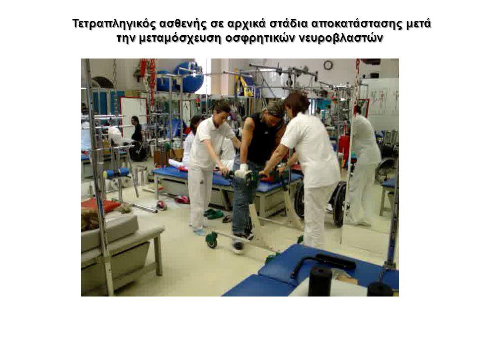Τετραπληγικός ασθενής σε αρχικά στάδια αποκατάστασης μετά την μεταμόσχευση οσφρητικών νευροβλαστών