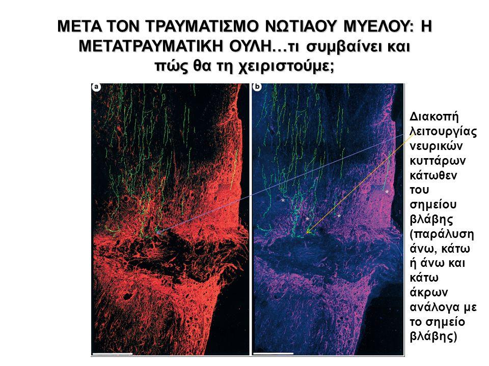 ΜΕΤΑ ΤΟΝ ΤΡΑΥΜΑΤΙΣΜΟ ΝΩΤΙΑΟΥ ΜΥΕΛΟΥ: H ΜΕΤΑΤΡΑΥΜΑΤΙΚΗ ΟΥΛΗ…τι συμβαίνει και πώς θα τη χειριστούμε; Διακοπή λειτουργίας νευρικών κυττάρων κάτωθεν του σημείου βλάβης (παράλυση άνω, κάτω ή άνω και κάτω άκρων ανάλογα με το σημείο βλάβης)