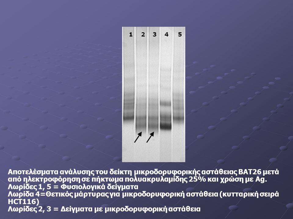 1 2 3 4 5 Αποτελέσματα ανάλυσης του δείκτη μικροδορυφορικής αστάθειας BAT26 μετά από ηλεκτροφόρηση σε πήκτωμα πολυακρυλαμίδης 25% και χρώση με Ag.