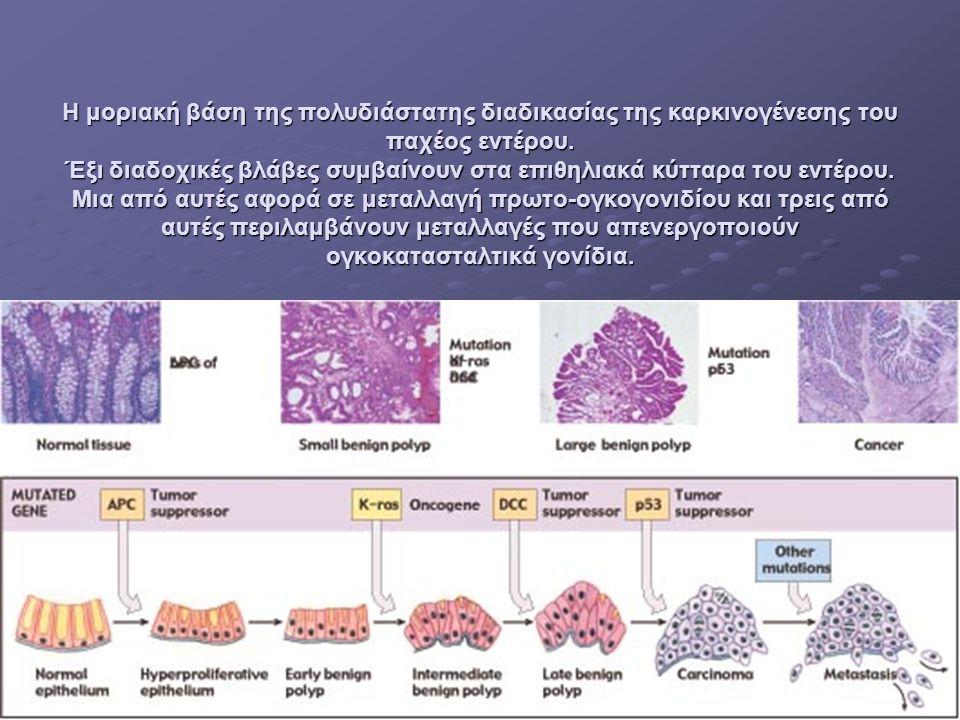 Η μοριακή βάση της πολυδιάστατης διαδικασίας της καρκινογένεσης του παχέος εντέρου.