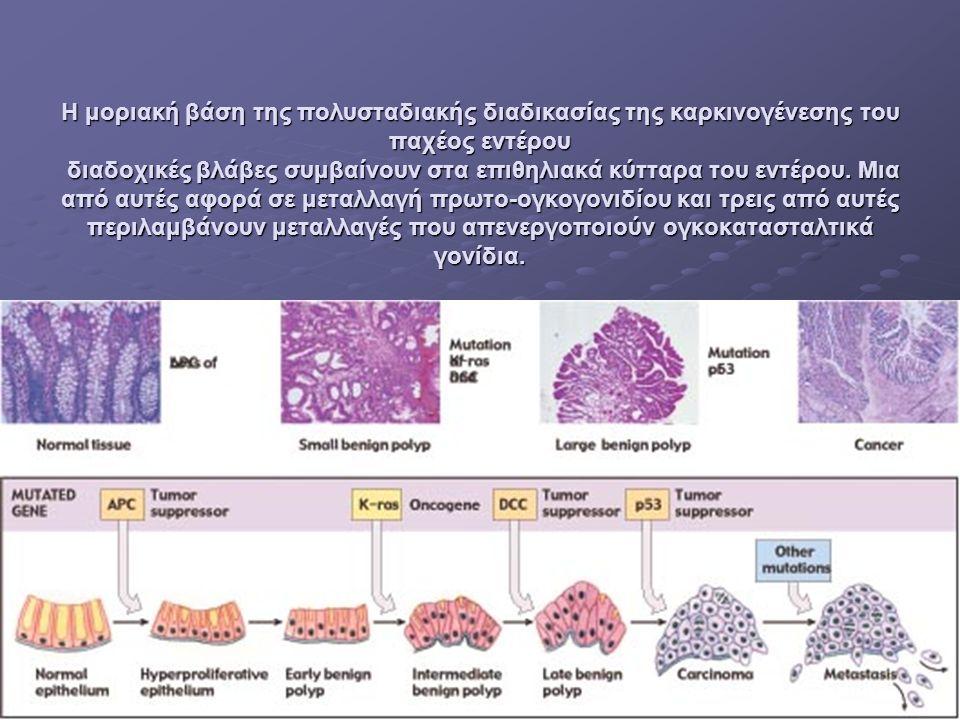 Η μοριακή βάση της πολυσταδιακής διαδικασίας της καρκινογένεσης του παχέος εντέρου διαδοχικές βλάβες συμβαίνουν στα επιθηλιακά κύτταρα του εντέρου.