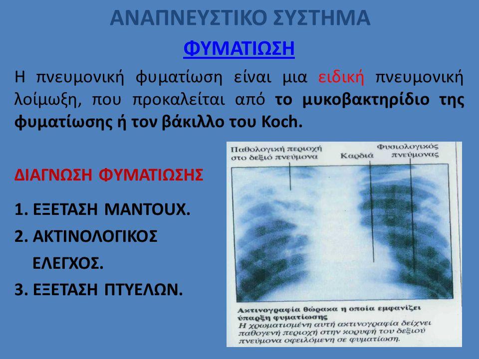 ΑΝΑΠΝΕΥΣΤΙΚΟ ΣΥΣΤΗΜΑ ΦΥΜΑΤΙΩΣΗ Η πνευμονική φυματίωση είναι μια ειδική πνευμονική λοίμωξη, που προκαλείται από το μυκοβακτηρίδιο της φυματίωσης ή τον