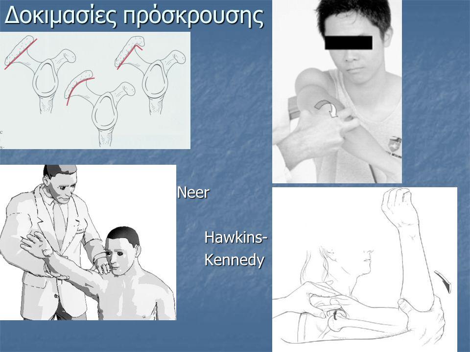 Δοκιμασίες πρόσκρουσης Neer Hawkins- Hawkins- Kennedy Kennedy