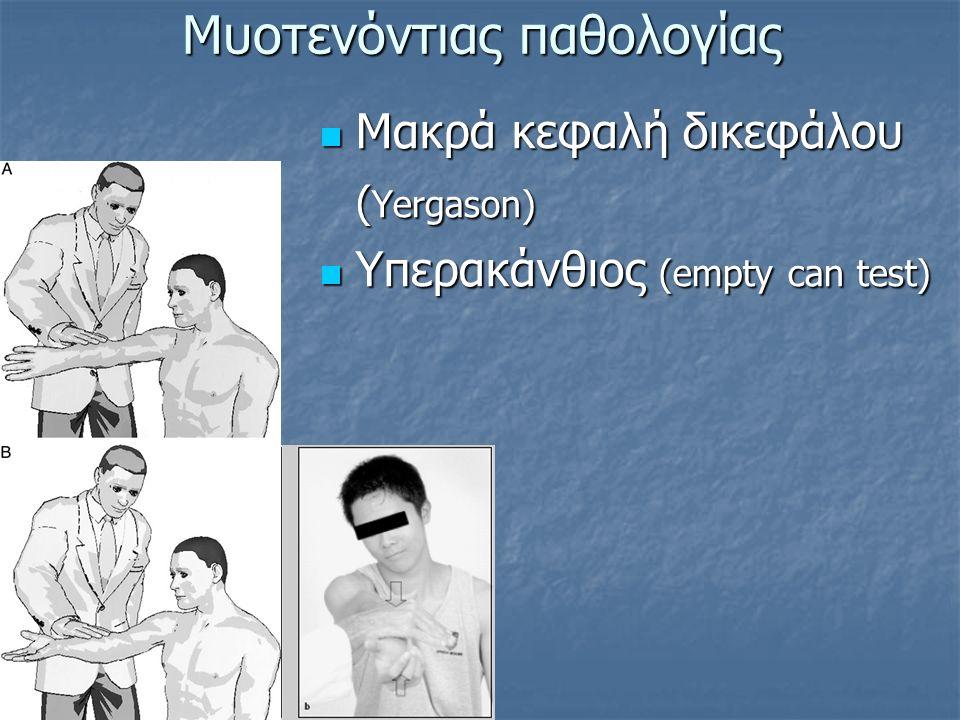 Μυοτενόντιας παθολογίας Μακρά κεφαλή δικεφάλου Μακρά κεφαλή δικεφάλου ( Yergason) Υπερακάνθιος (empty can test) Υπερακάνθιος (empty can test)