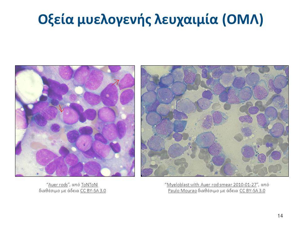 """Οξεία μυελογενής λευχαιμία (ΟΜΛ) 14 """"Auer rods"""", από ToNToNi διαθέσιμο με άδεια CC BY-SA 3.0Auer rodsToNToNiCC BY-SA 3.0 """"Myeloblast with Auer rod sme"""