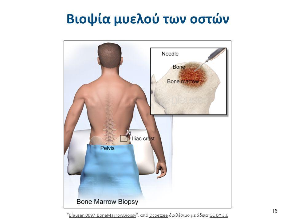 """Βιοψία μυελού των οστών 16 """"Blausen 0097 BoneMarrowBiopsy"""", από Dcoetzee διαθέσιμο με άδεια CC BY 3.0Blausen 0097 BoneMarrowBiopsyDcoetzeeCC BY 3.0"""