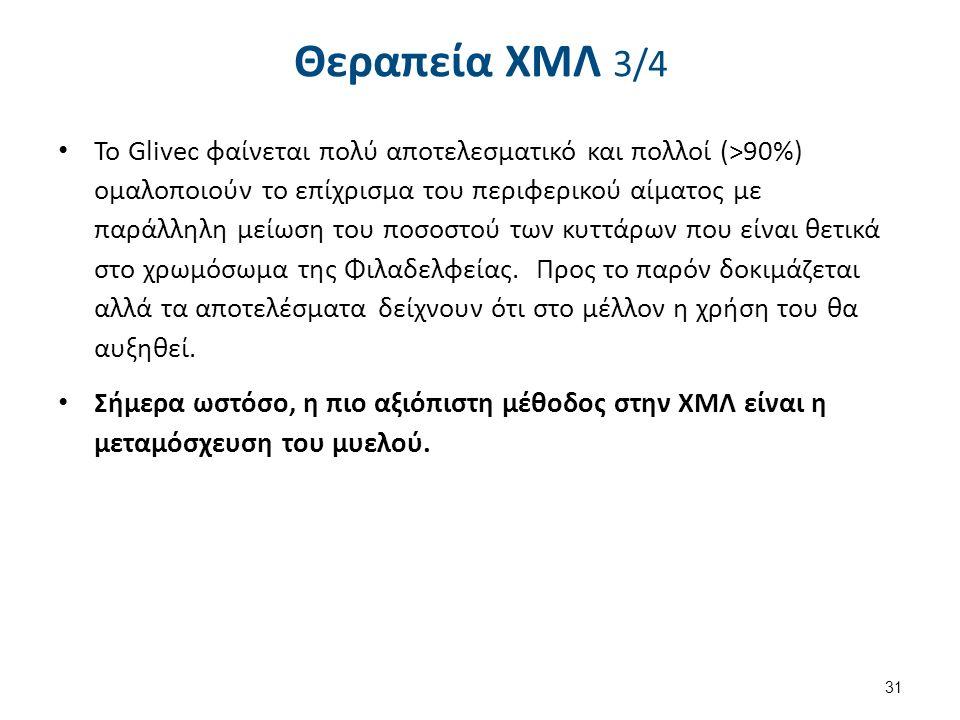 Θεραπεία ΧΜΛ 3/4 Το Glivec φαίνεται πολύ αποτελεσματικό και πολλοί (>90%) ομαλοποιούν το επίχρισμα του περιφερικού αίματος με παράλληλη μείωση του ποσ