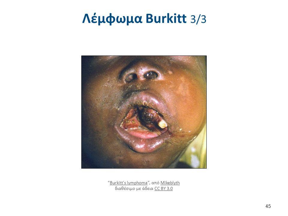 """Λέμφωμα Burkitt 3/3 45 """"Burkitt's lymphoma"""", από Mikeblyth διαθέσιμο με άδεια CC BY 3.0Burkitt's lymphomaMikeblythCC BY 3.0"""