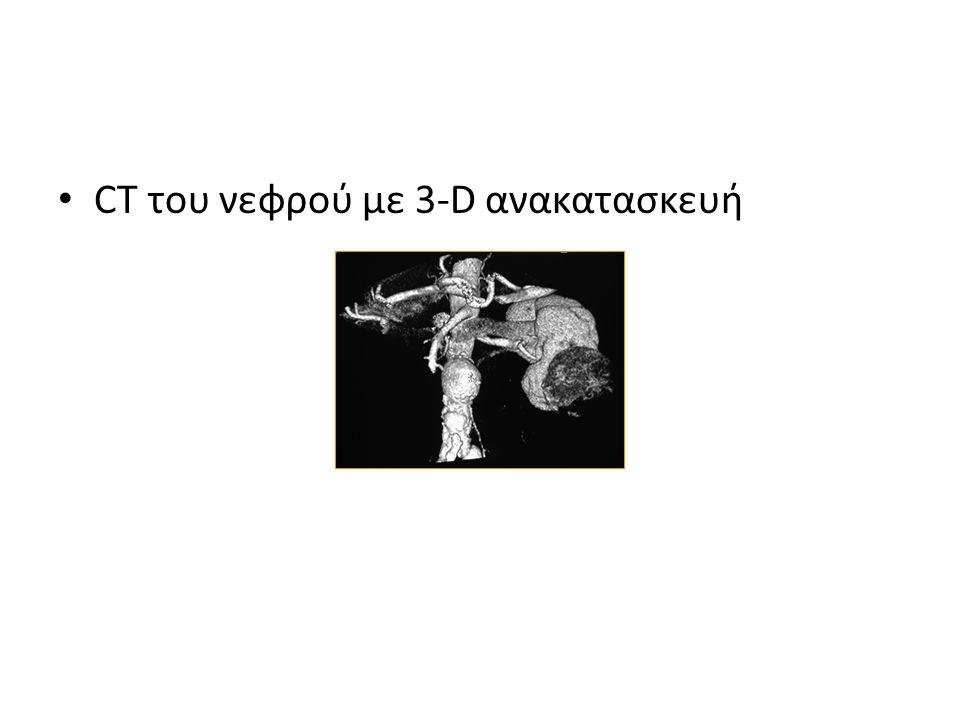 CT του νεφρού με 3-D ανακατασκευή
