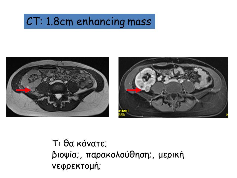 CT: 1.8cm enhancing mass Τι θα κάνατε; βιοψία;, παρακολούθηση;, μερική νεφρεκτομή;