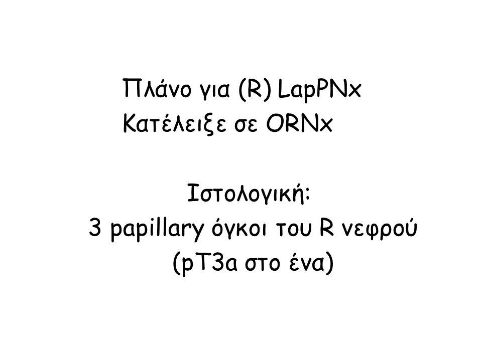 Πλάνο για (R) LapPNx Κατέλειξε σε ORNx Ιστολογική: 3 papillary όγκοι του R νεφρού (pT3a στο ένα)