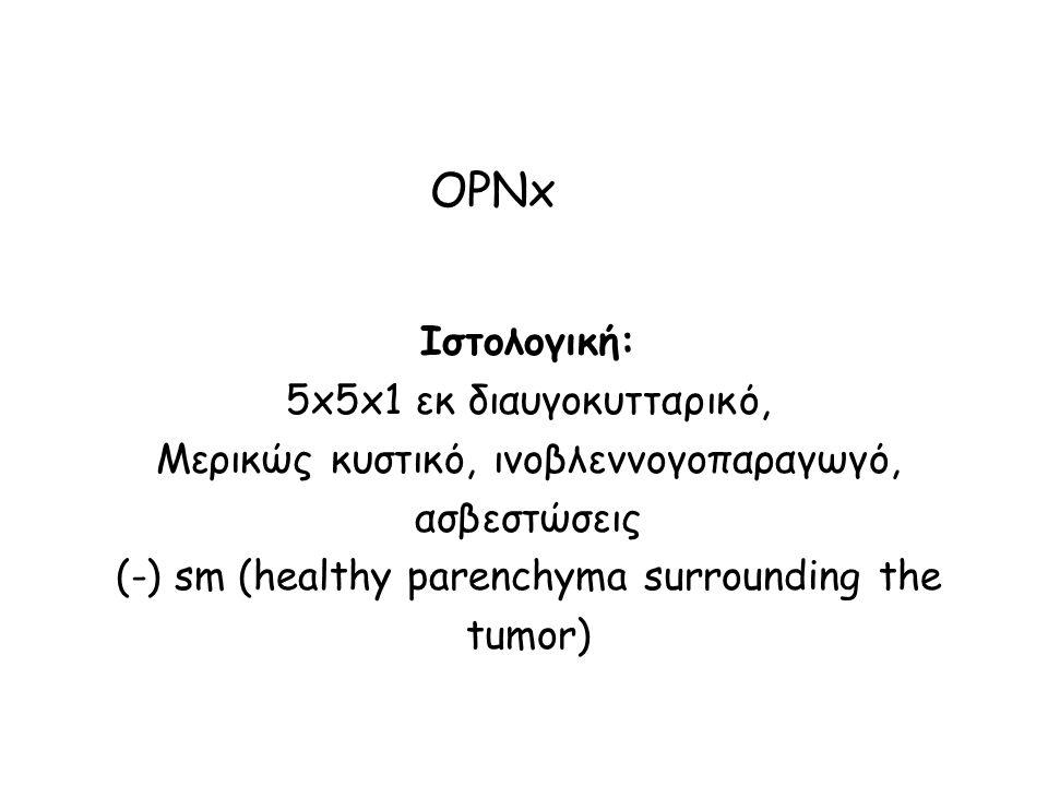 OPNx Ιστολογική: 5x5x1 εκ διαυγοκυτταρικό, Μερικώς κυστικό, ινοβλεννογοπαραγωγό, ασβεστώσεις (-) sm (healthy parenchyma surrounding the tumor)