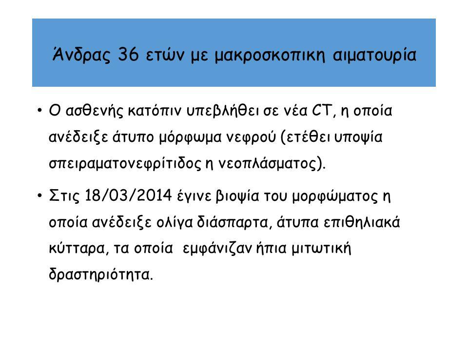 Περιστατικό Άνδρας 51y PMHx:Υδραδενίτιδα, Οικογενειακός Μεσογειακός πυρετός, Ρευματοειδή αρθρίτιδα PSHx: Ελεύθερο FHx: Ο πατέρας πέθανε από προβλήματα με τα νεφρά SHx: Καπνιστής MEDS: Colchicine, Ciroxat PEx: παχυσαρκία Συμπτώματα: Ήπιο οσφυικό άλγος