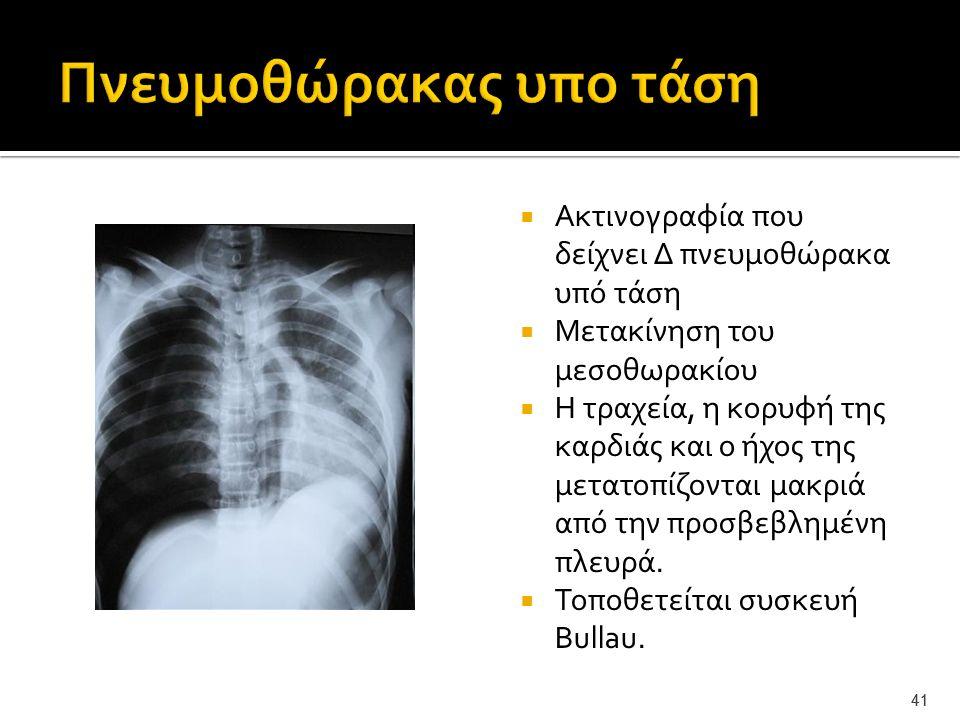41  Ακτινογραφία που δείχνει Δ πνευμοθώρακα υπό τάση  Μετακίνηση του μεσοθωρακίου  Η τραχεία, η κορυφή της καρδιάς και ο ήχος της μετατοπίζονται μα