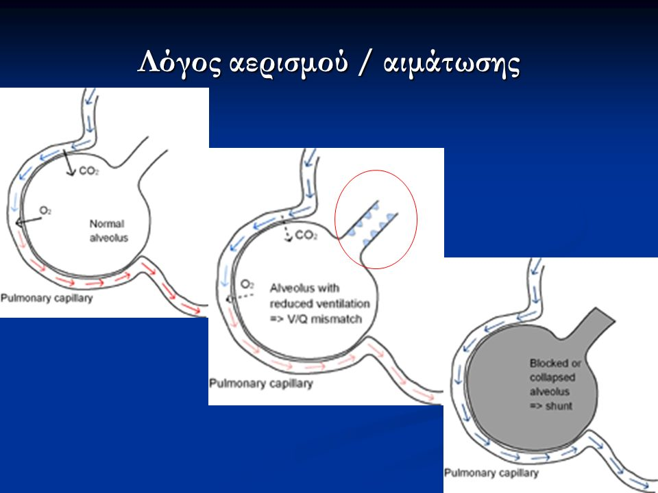 Ενδείξεις διασωλήνωσης και έναρξης μηχανικού αερισμού Φ.Τ.