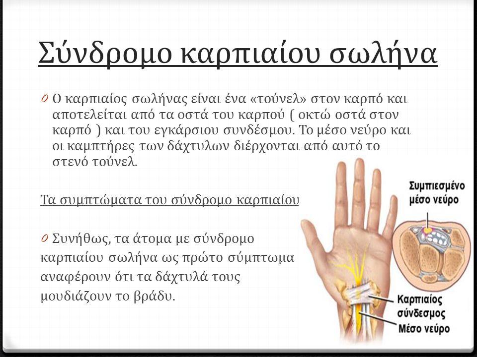 Σύνδρομο καρπιαίου σωλήνα 0 Ο καρπιαίος σωλήνας είναι ένα «τούνελ» στον καρπό και αποτελείται από τα οστά του καρπού ( οκτώ οστά στον καρπό ) και του
