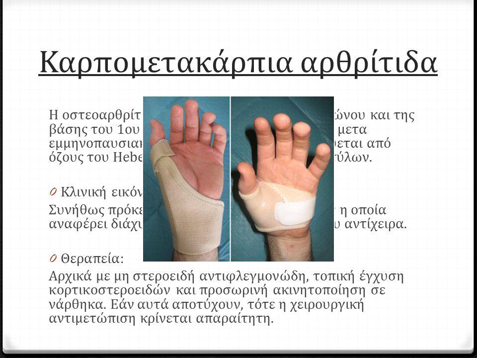 Καρπομετακάρπια αρθρίτιδα Η οστεοαρθρίτιδα μεταξύ του μείζονος πολυγώνου και της βάσης του 1ου μετακαρπίου είναι συνήθης σε μετα εμμηνοπαυσιακές γυναί