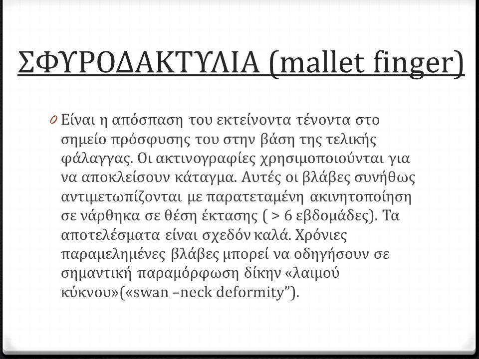 ΣΦΥΡΟΔΑΚΤΥΛΙΑ (mallet finger) 0 Είναι η απόσπαση του εκτείνοντα τένοντα στο σημείο πρόσφυσης του στην βάση της τελικής φάλαγγας. Οι ακτινογραφίες χρησ