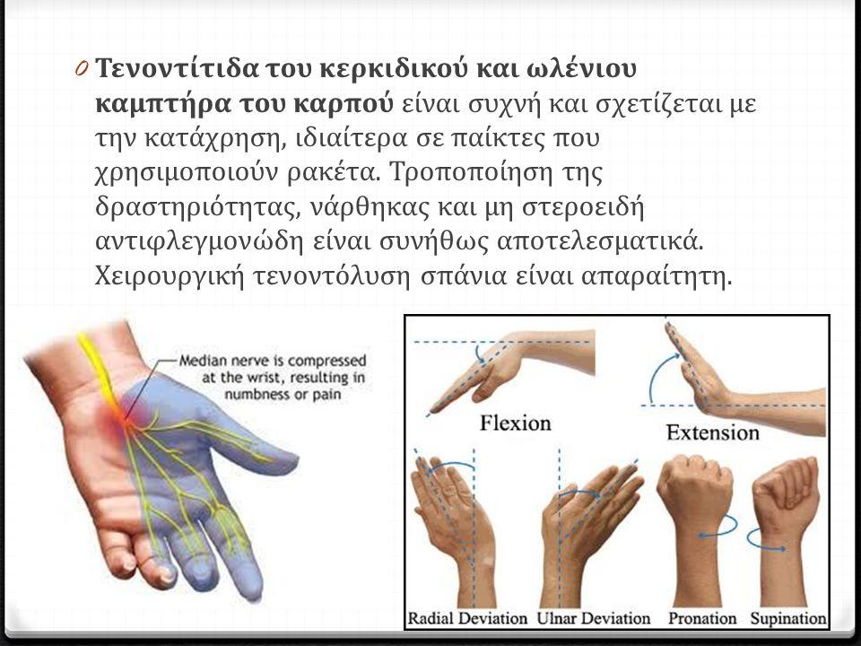 0 Τενοντίτιδα του κερκιδικού και ωλένιου καμπτήρα του καρπού είναι συχνή και σχετίζεται με την κατάχρηση, ιδιαίτερα σε παίκτες που χρησιμοποιούν ρακέτ