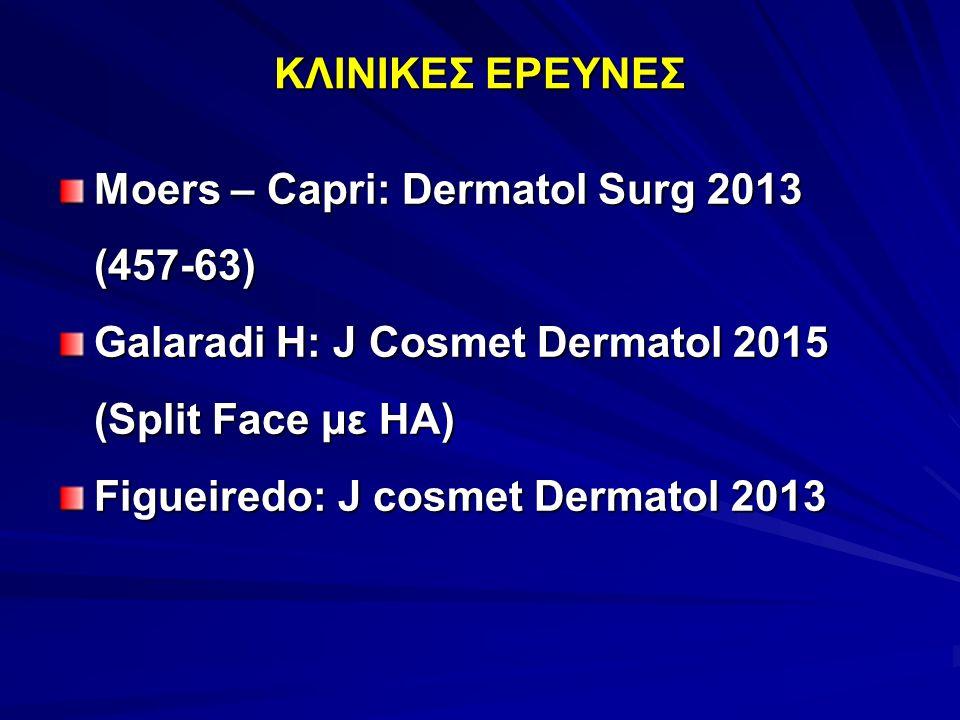 ΚΛΙΝΙΚΕΣ ΕΡΕΥΝΕΣ Moers – Capri: Dermatol Surg 2013 (457-63) Galaradi H: J Cosmet Dermatol 2015 (Split Face με HA) Figueiredo: J cosmet Dermatol 2013