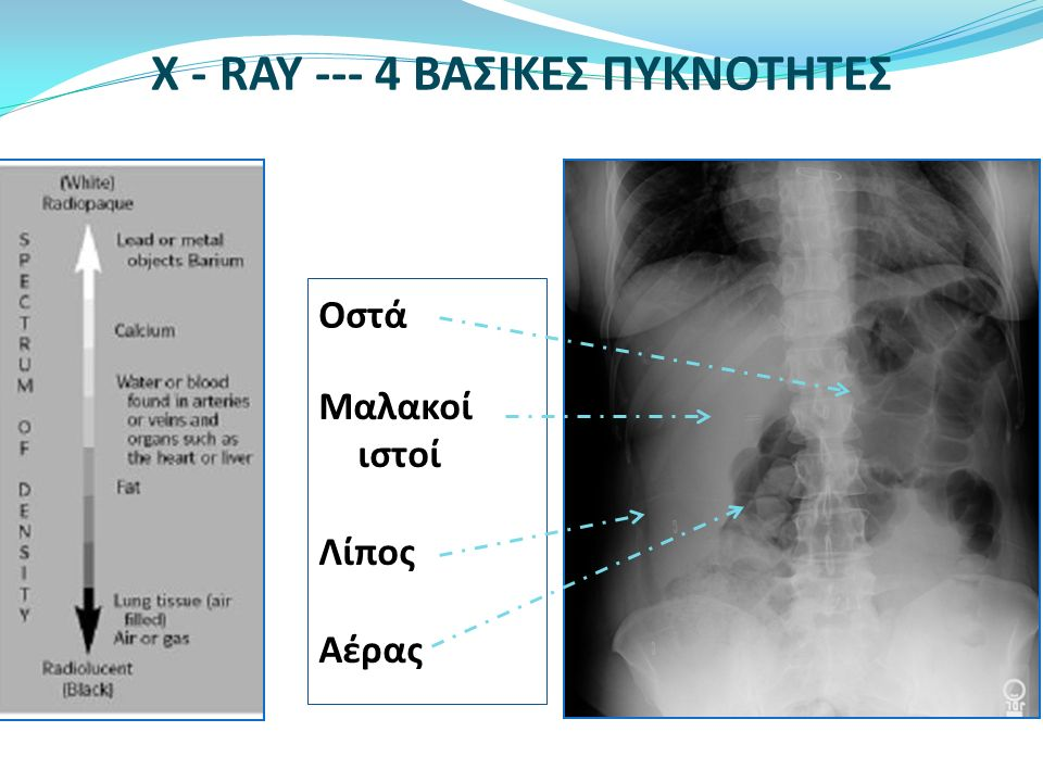 Ακτινογραφία κοιλίας  Τα οστά  Τα συμπαγή όργανα  Αέρα στο ΓΕΣ  Αποτιτανώσεις- λίθους  Λίπος