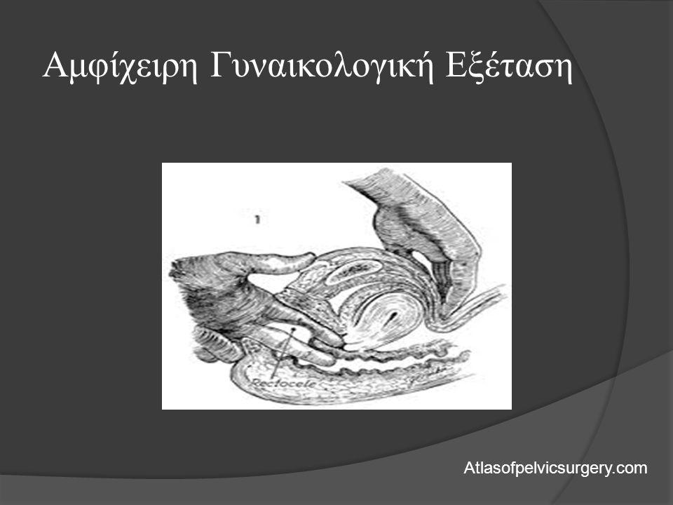 Αμφίχειρη Γυναικολογική Εξέταση Atlasofpelvicsurgery.com