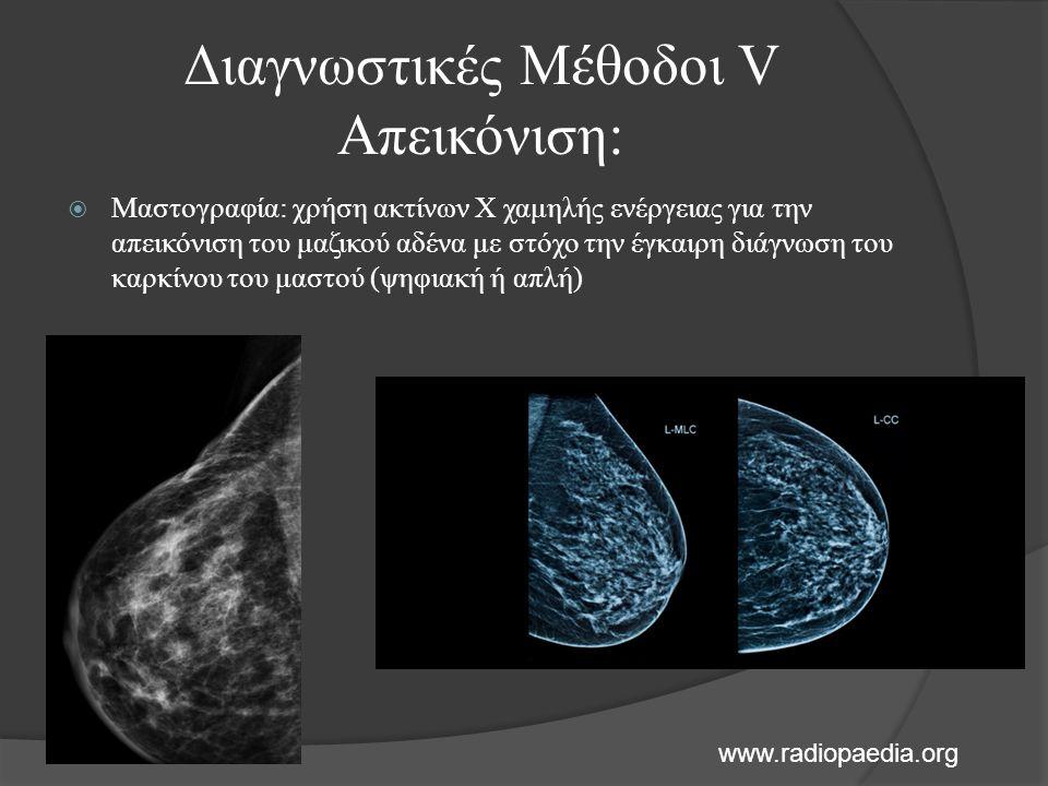  Μαστογραφία: χρήση ακτίνων Χ χαμηλής ενέργειας για την απεικόνιση του μαζικού αδένα με στόχο την έγκαιρη διάγνωση του καρκίνου του μαστού (ψηφιακή ή απλή) Διαγνωστικές Μέθοδοι V Απεικόνιση: www.radiopaedia.org
