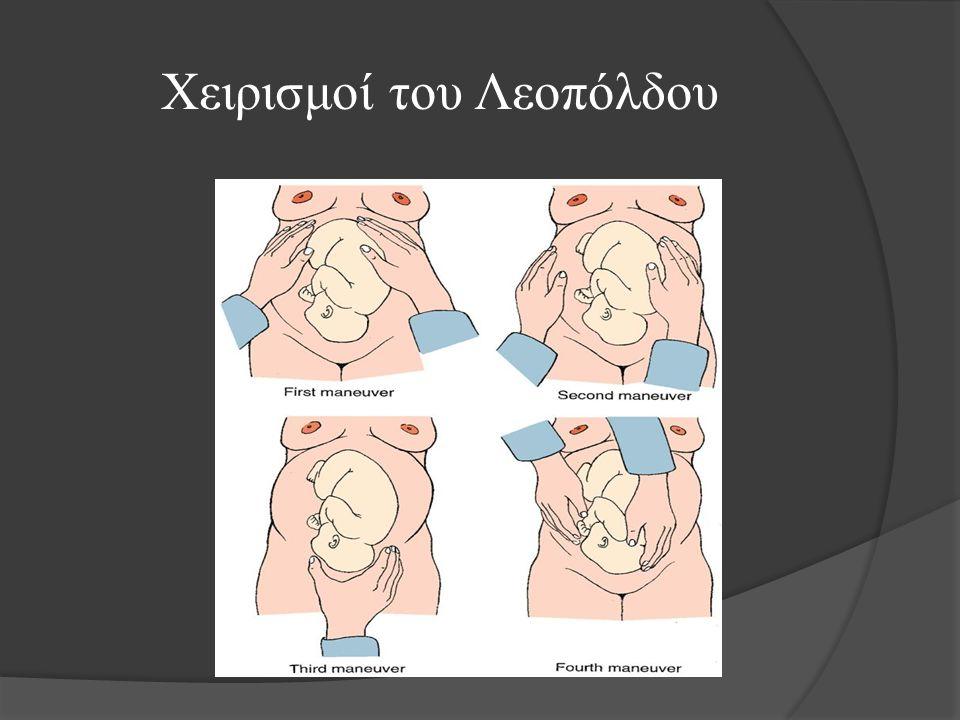 Ύψος πυθμένα μήτρας / μήνα κύησης