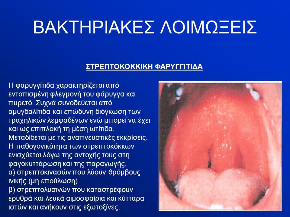 ΒΑΚΤΗΡΙΑΚΕΣ ΛΟΙΜΩΞΕΙΣ ΣΤΡΕΠΤΟΚΟΚΚΙΚΗ ΦΑΡΥΓΓΙΤΙΔΑ Η φαρυγγίτιδα χαρακτηρίζεται από εντοπισμένη φλεγμονή του φάρυγγα και πυρετό.