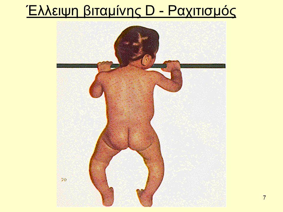 7 Έλλειψη βιταμίνης D - Ραχιτισμός