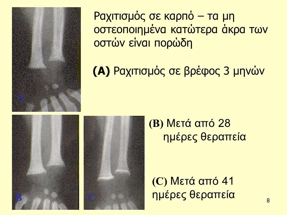 8 Ραχιτισμός σε καρπό – τα μη οστεοποιημένα κατώτερα άκρα των οστών είναι πορώδη (A) Ραχιτισμός σε βρέφος 3 μηνών (B) Μετά από 28 ημέρες θεραπεία (C) Μετά από 41 ημέρες θεραπεία A BC