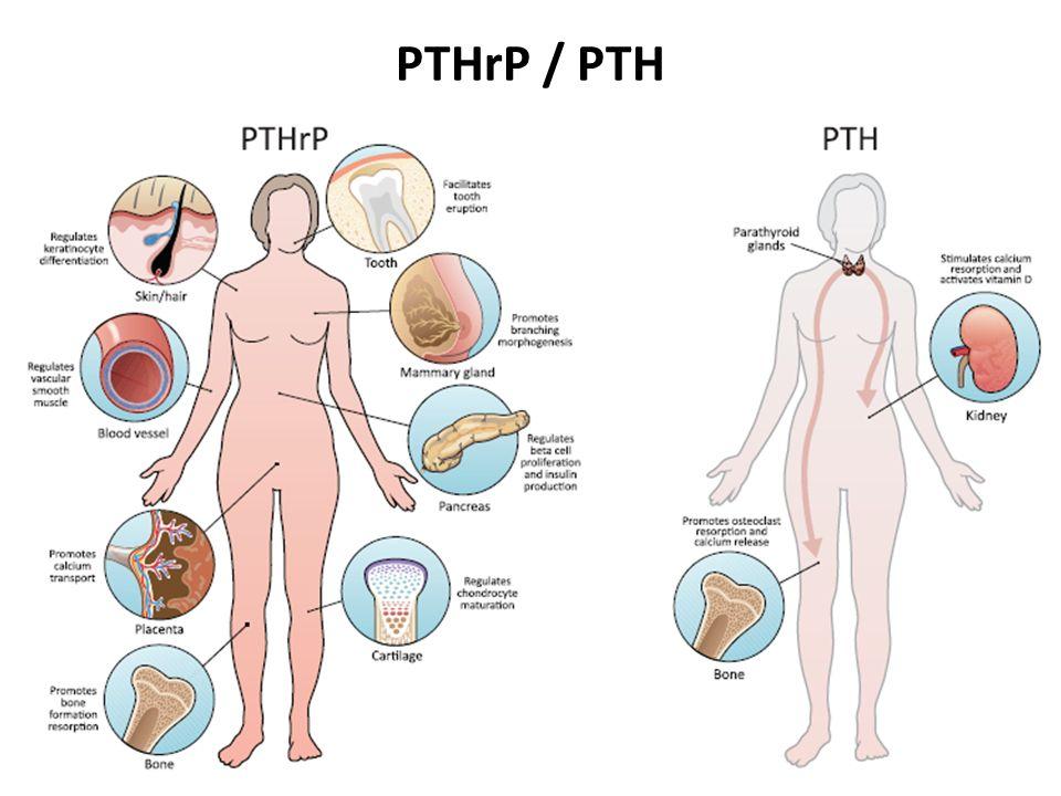 PTHrP / PTH