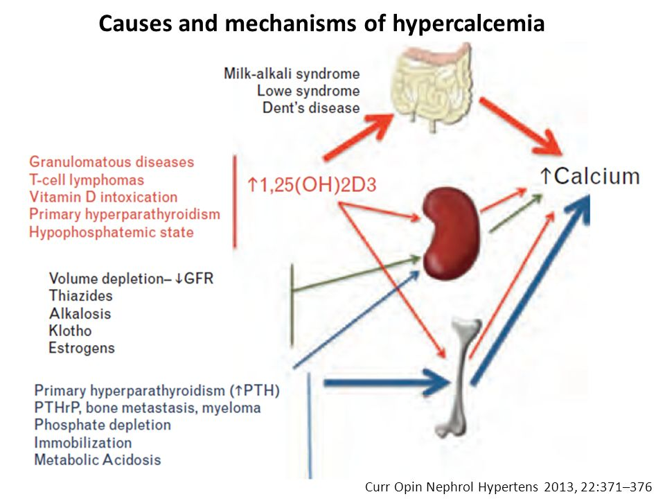 Curr Opin Nephrol Hypertens 2013, 22:371–376 Causes and mechanisms of hypercalcemia