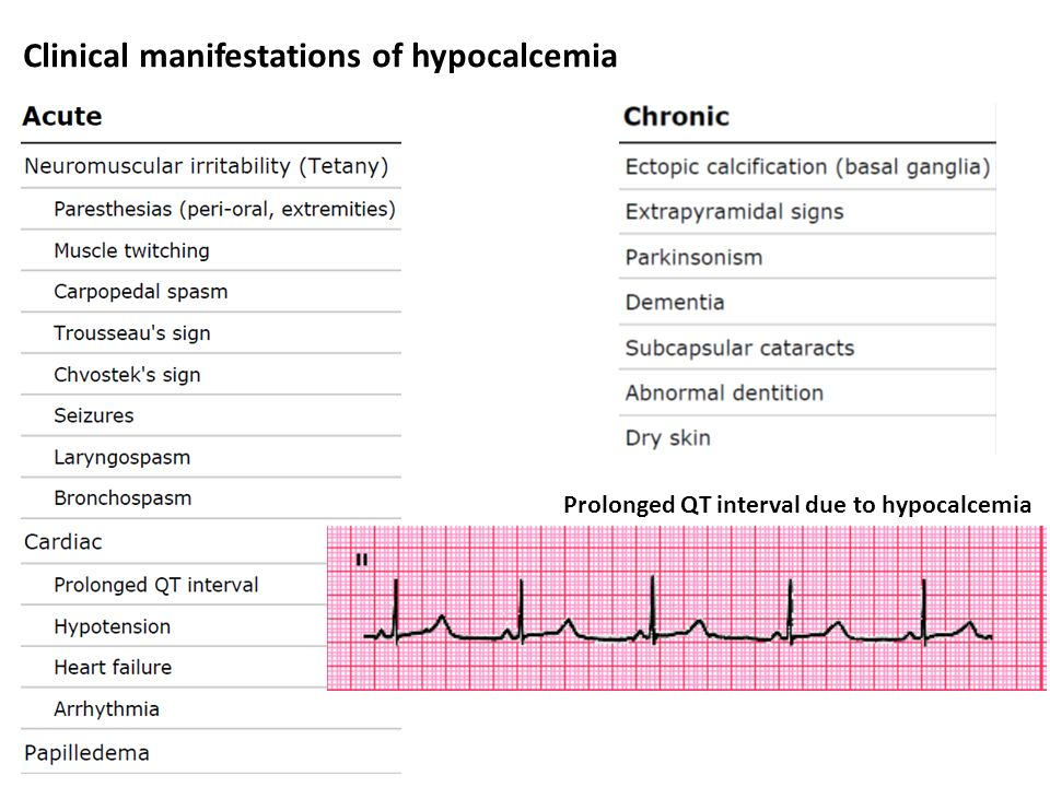 Clinical manifestations of hypocalcemia Prolonged QT interval due to hypocalcemia