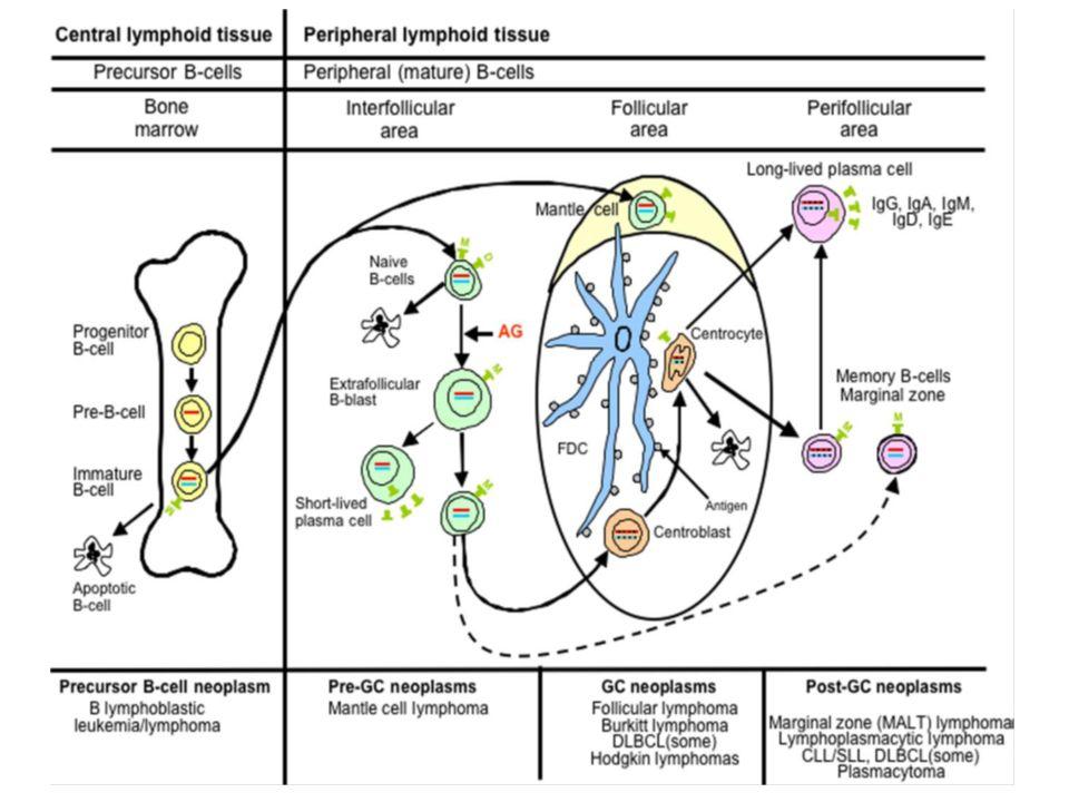 B Χρόνια Λεμφοκυτταρική Λευχαιμία / Λέμφωμα από μικρά λεμφοκύτταρα (Β-CLL/SLL)(6-7%) WHO, 2008 Νεοπλασία αποτελούμενη από μονόμορφα μικρά Β- λεμφοκύτταρα στο περιφερικό αίμα, το μυελό των οστών, τον σπλήνα και τους λεμφαδένες, με παρουσία αθροίσεων προλεμφοκυττάρων και παραανοσοβλαστών σε πολλαπλασιαστικά κέντρα (ψευδοοζίδια) σε ιστικά διηθήματα.