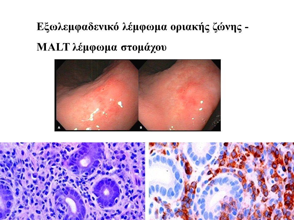 L26 Εξωλεμφαδενικό λέμφωμα οριακής ζώνης - MALT λέμφωμα στομάχου