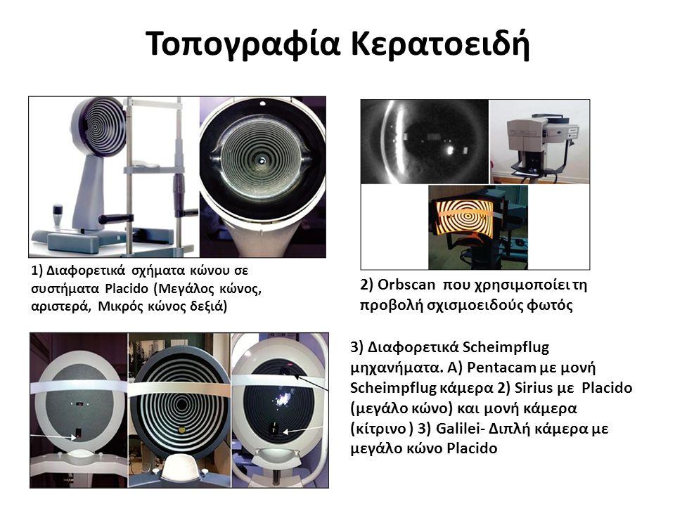 Τοπογραφία Κερατοειδή 1) Διαφορετικά σχήματα κώνου σε συστήματα Placido (Μεγάλος κώνος, αριστερά, Μικρός κώνος δεξιά) 2) Orbscan που χρησιμοποίει τη προβολή σχισμοειδούς φωτός 3) Διαφορετικά Scheimpflug μηχανήματα.