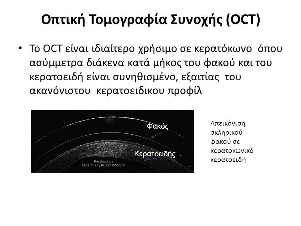 Οπτική Τομογραφία Συνοχής (OCT) Το OCT είναι ιδιαίτερο χρήσιμο σε κερατόκωνο όπου ασύμμετρα διάκενα κατά μήκος του φακού και του κερατοειδή είναι συνηθισμένο, εξαιτίας του ακανόνιστου κερατοειδικου προφίλ Απεικόνιση σκληρικού φακού σε κερατοκωνικό κερατοειδή Φακός Κερατοειδής