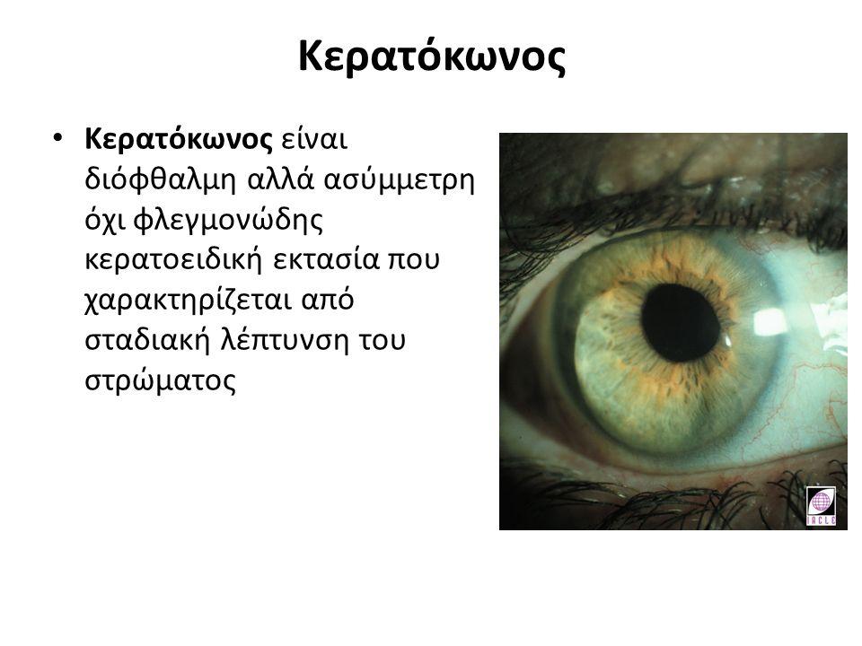 Κερατόκωνος Κερατόκωνος είναι διόφθαλμη αλλά ασύμμετρη όχι φλεγμονώδης κερατοειδική εκτασία που χαρακτηρίζεται από σταδιακή λέπτυνση του στρώματος