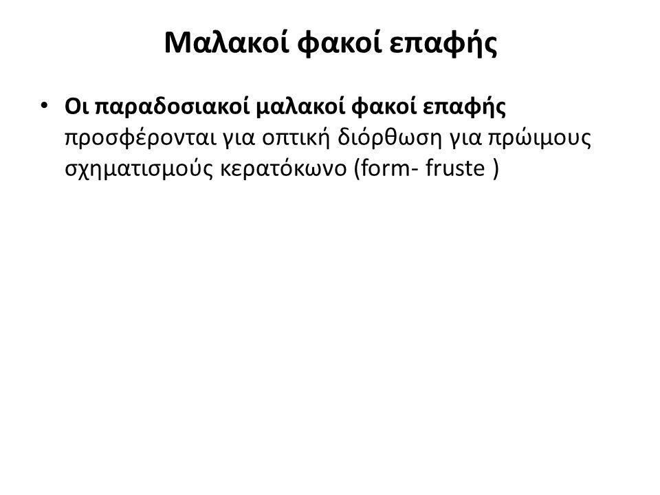Μαλακοί φακοί επαφής Οι παραδοσιακοί μαλακοί φακοί επαφής προσφέρονται για οπτική διόρθωση για πρώιμους σχηματισμούς κερατόκωνο (form- fruste )